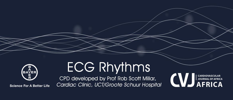 Ecg Rhythms Earn 3 Cpd Ceu Points Elearn Connection